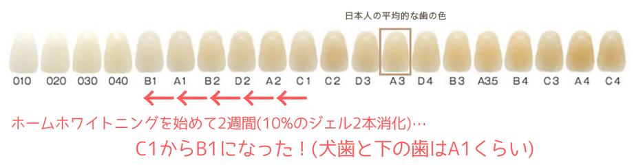 ホームホワイトニングの歯の色の変化